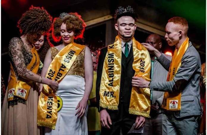 First Ever Mr and Miss Albinism East Africa