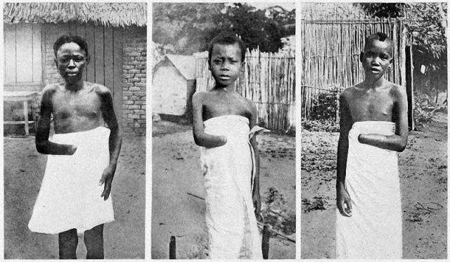 Confront Your Dark Colonial Past in Congo and Apologise – UN Tells Belgium
