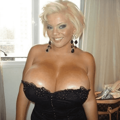 Woman with the Largest Breasts Implant in the World