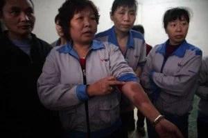 En esta imagen tomada el 26 de marzo de 2015, una trabajadora muestra marcas de golpes que, según sostiene, fueron causados por la policía que intentaba reprimir una manifestación obrera dos días antes, dentro de la Cuiheng Handbag Factory en Nanlang, en la ciudad de Zhongshan. en la provincia de Guangdong, en el sur de China. (Foto AP/Didi Tang)