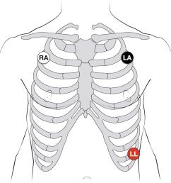 ecg lead positioning u2022 litfl medical blog u2022 ecg library basics pediatric ekg 12 lead placement diagram [ 1000 x 806 Pixel ]