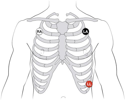 small resolution of ecg lead positioning u2022 litfl medical blog u2022 ecg library basics pediatric ekg 12 lead placement diagram
