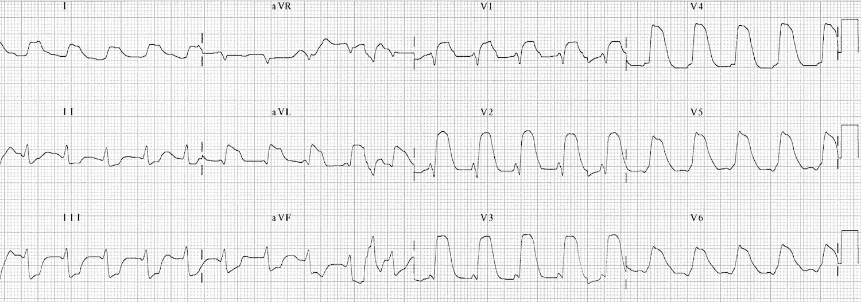 Anterior Myocardial Infarction • LITFL • ECG Library Diagnosis