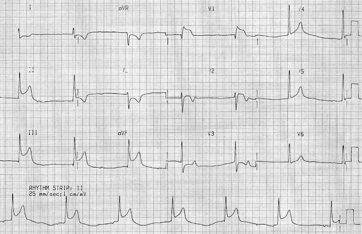 Inferior Stemi Litfl Medical Blog Ecg Library Diagnosis