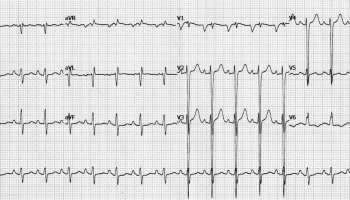 Atrial Fibrillation • LITFL Medical Blog • CCC Cardiology