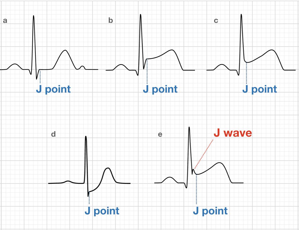 J Point Ecg Interval Litfl Medical Blog Ecg Library Basics