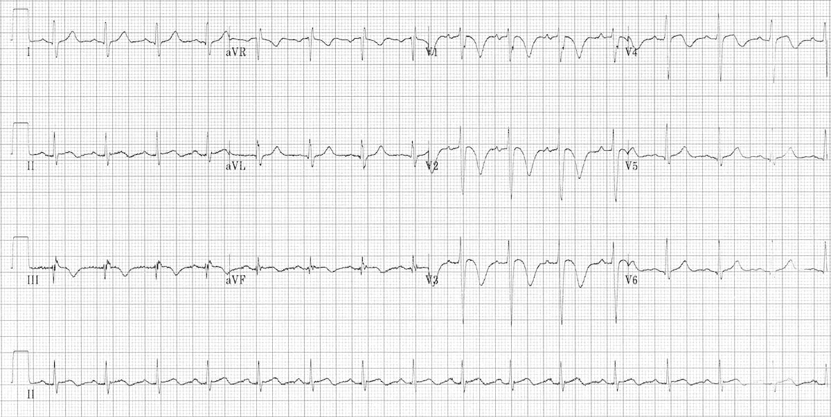 ECG changes in Pulmonary Embolism • LITFL • ECG Library