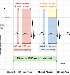 ecg rate 25 mm sec standard paper speed [ 1200 x 1147 Pixel ]