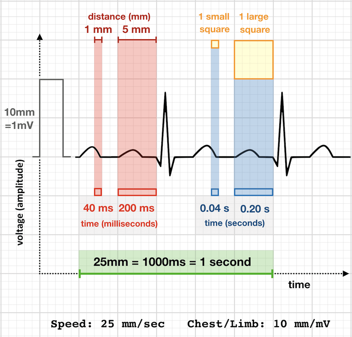 hight resolution of ecg rate 25 mm sec standard paper speed