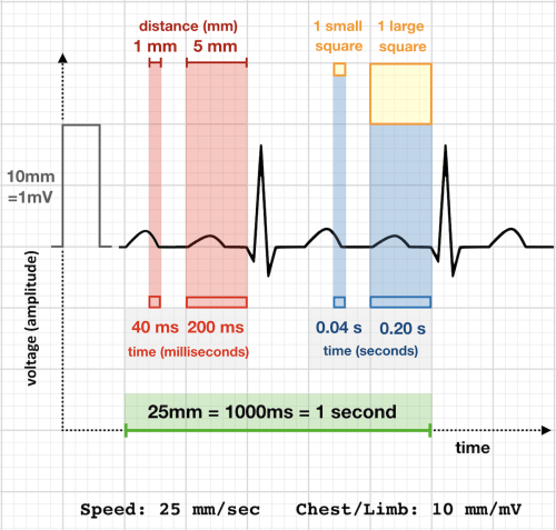small resolution of ecg rate 25 mm sec standard paper speed