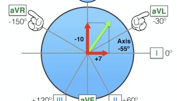 ECG Axis Interpretation • LITFL Medical Blog • ECG Library