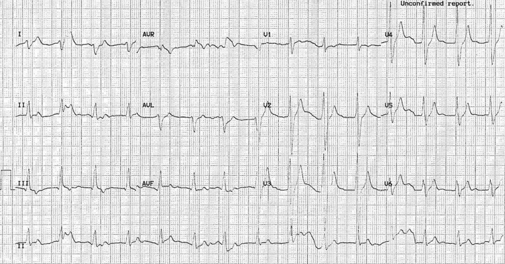 Carbamazepine Cardiotoxicity • LITFL • ECG Library Toxicology
