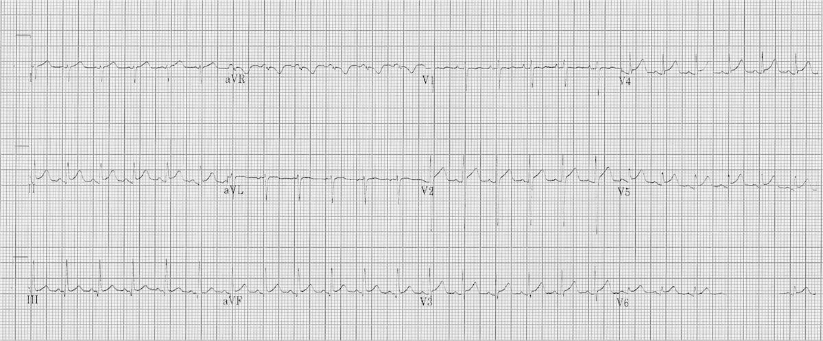 Myocarditis ECG changes • LITFL • ECG Library Diagnosis