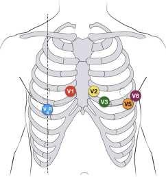 ecg lead positioning u2022 litfl medical blog u2022 ecg library basics pediatric ekg 12 lead placement diagram [ 1000 x 800 Pixel ]