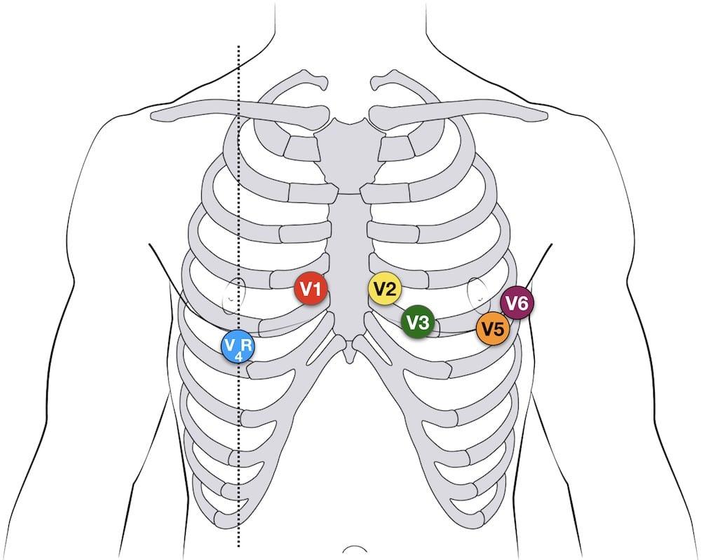 medium resolution of ecg lead positioning u2022 litfl medical blog u2022 ecg library basics pediatric ekg 12 lead placement diagram