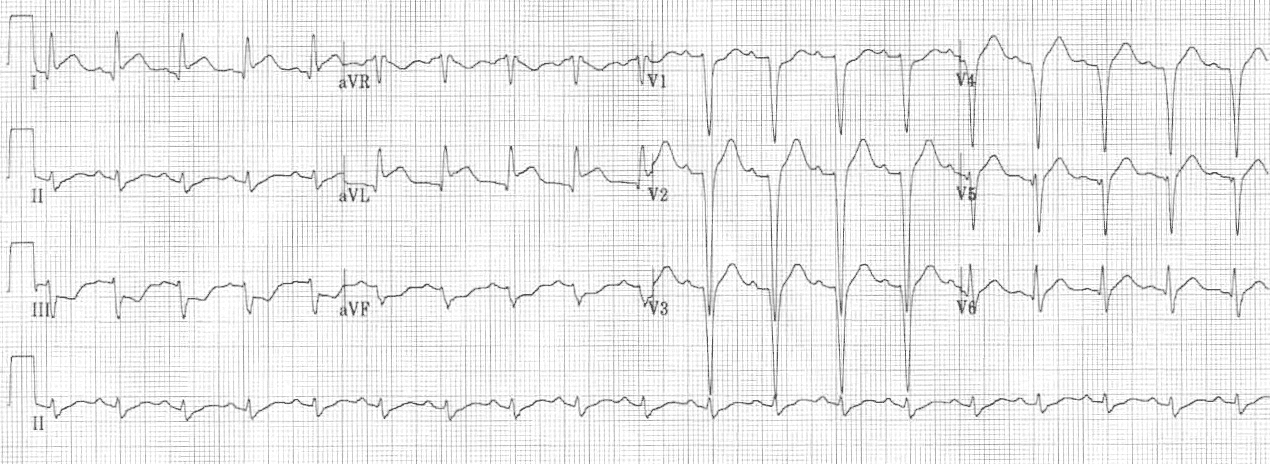 Lateral STEMI ECG changes • LITFL • ECG Library Diagnosis
