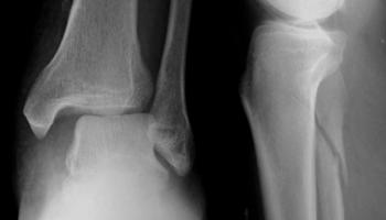 Jones Fracture • LITFL Medical Blog • Medical Eponym Library