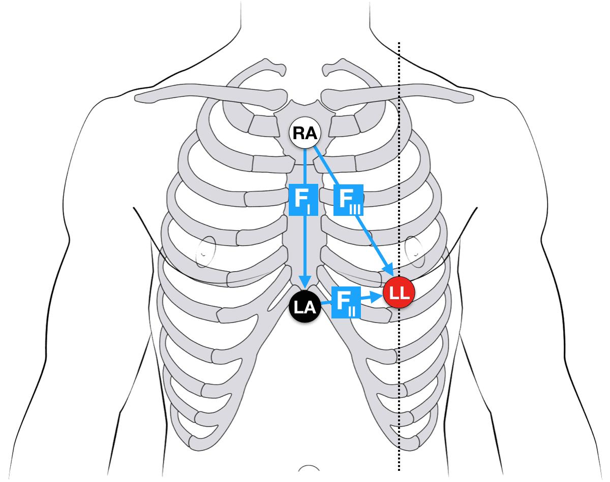 Ecg Lead Positioning Litfl Medical Blog Ecg Library Basics
