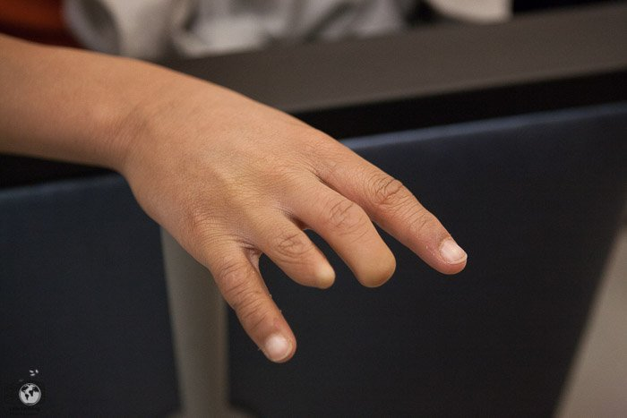 Amniotic Band Syndrome {Hand Surgery}