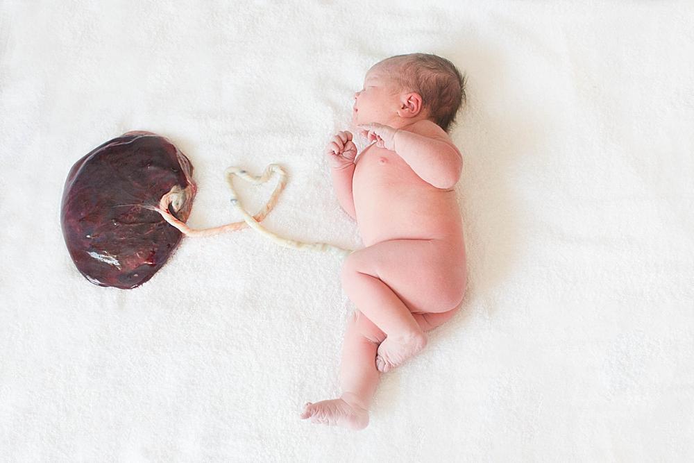 Newborn baby still attached to placenta.