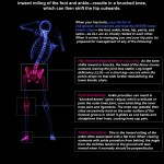 ken caryl-colorado-chiropractic-hip-low back-knee-infographic