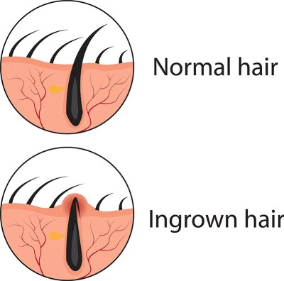 image of an ingrown hair or bump