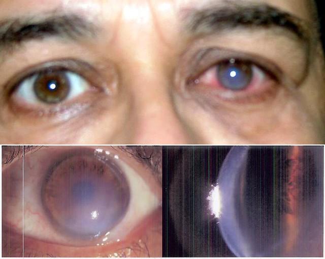 The eye & I