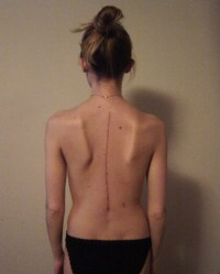 Scoliosis post surgery scar | This is my back about a ...