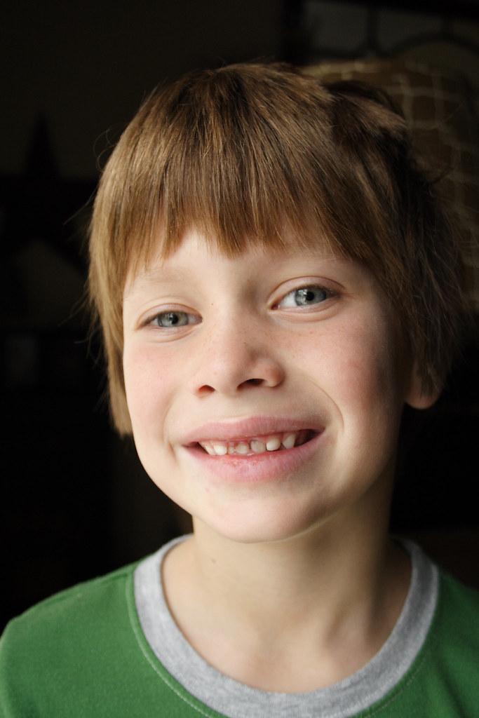 Toothless Drake : toothless, drake, Toothless, Smile, Drake, Front, Teeth, Lester, Flickr