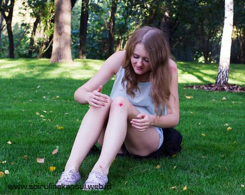 Obat Nyeri Cedera Lutut Di Apotik