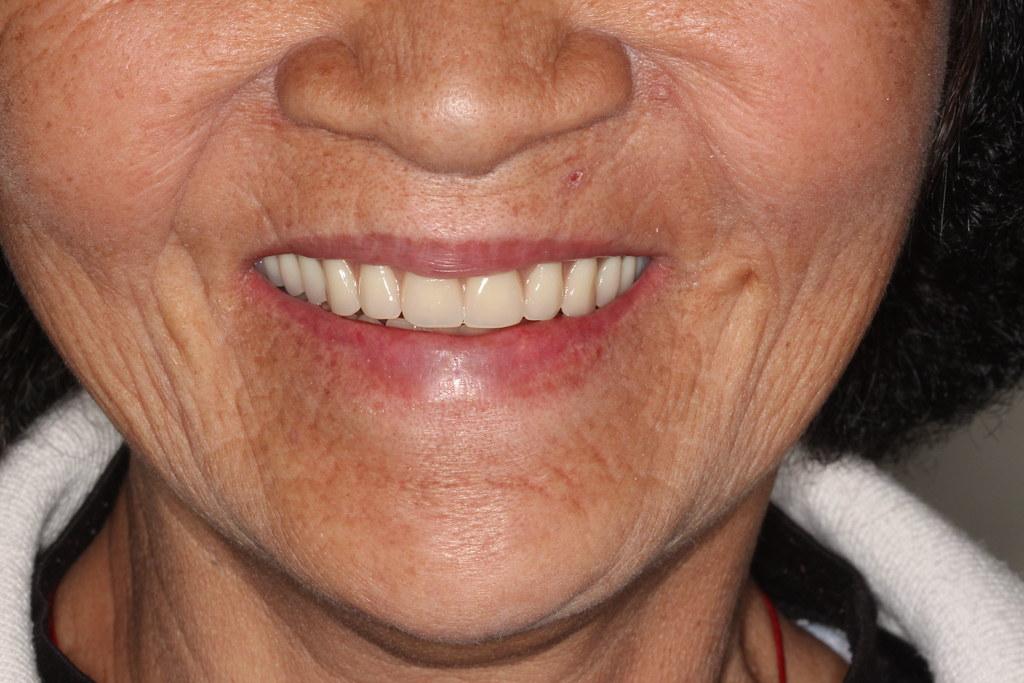 黃經理牙醫診所All on 4植牙 助老人恢復好「食」力 (7)   速度與雞禽   Flickr