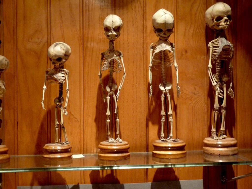 mutter museum baby skeletons  Maggie Wren  Flickr