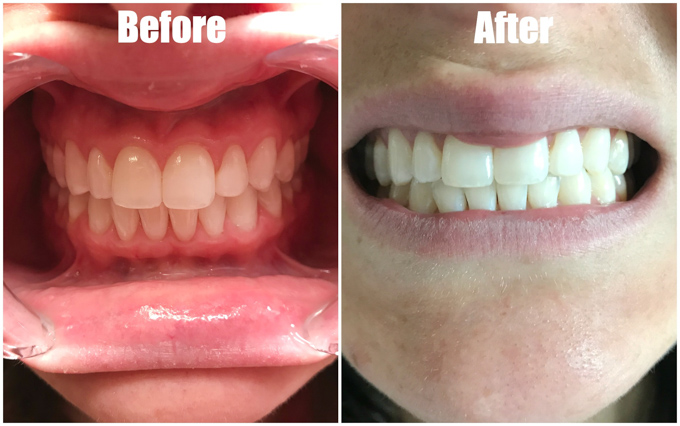 Ever wonder if invisible aligners are right for you? Here's an honest SmileDirectClub review, pros, cons, tips, and why SmileDirectClub is the easiest way for moms to straighten their smile from home.