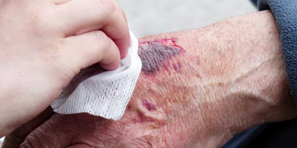 blessure-cellules-souches