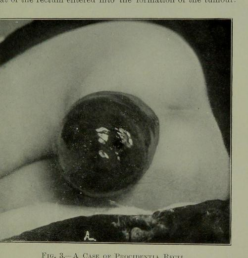 This image is taken from Page 19 of Diseases of the anus a ...