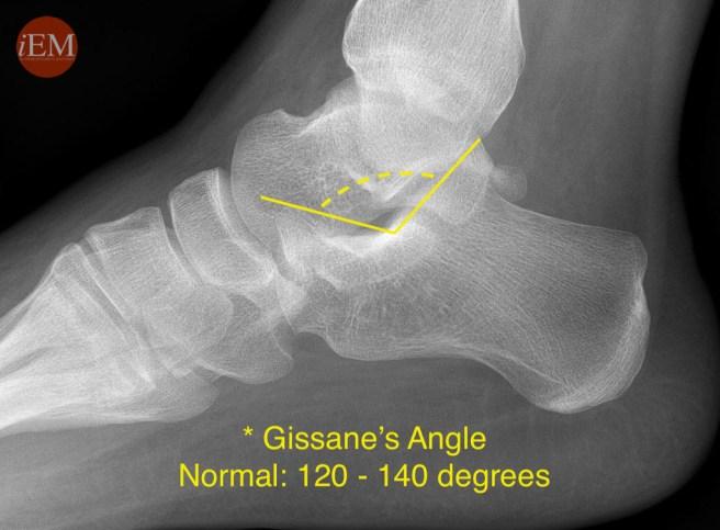 854 - Gissane angle- calcaneus
