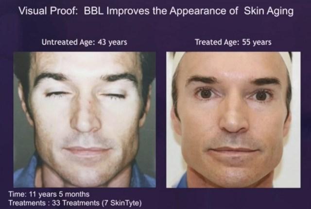 光耀BBL可以消除皺紋、改善臉部下垂、改善火雞脖子等等的問題,幫助皮膚抗老化,讓膠原蛋白新生,修復組織。