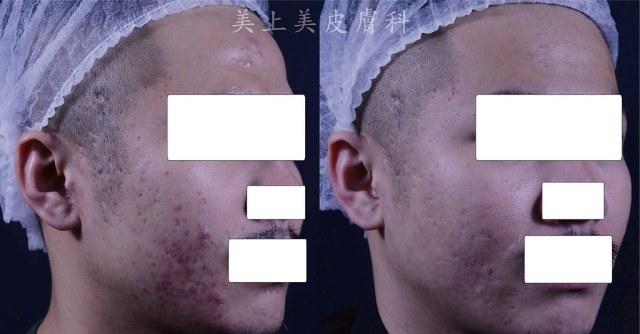 恆淨痘痘BBL利用光來治療青春痘,經過三種不同的濾片使用,達到控制青春痘,並且達到早期痘疤治療的效果。