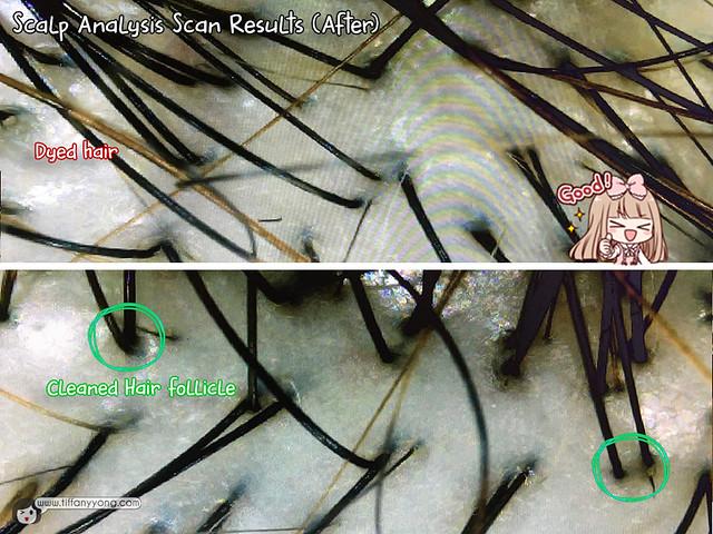 beijing-101-after-treatment-scalp-analysis