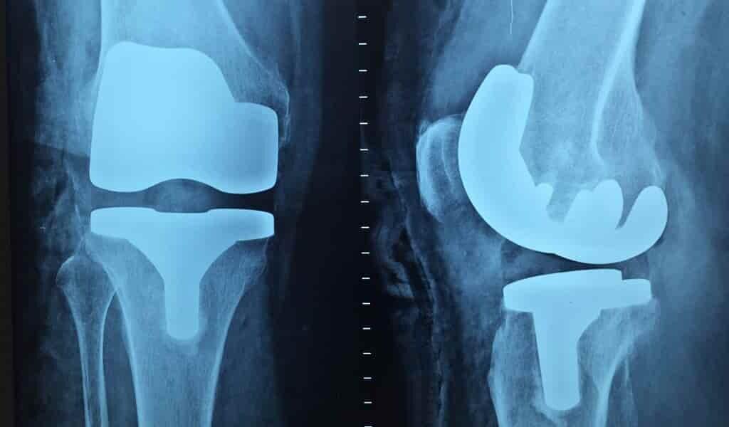des-implants-médicaux-plus-polyvalents-et-plus-résistants