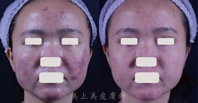 如果吃口服A酸都治不好的青春痘問題,可以試試光動力療法!