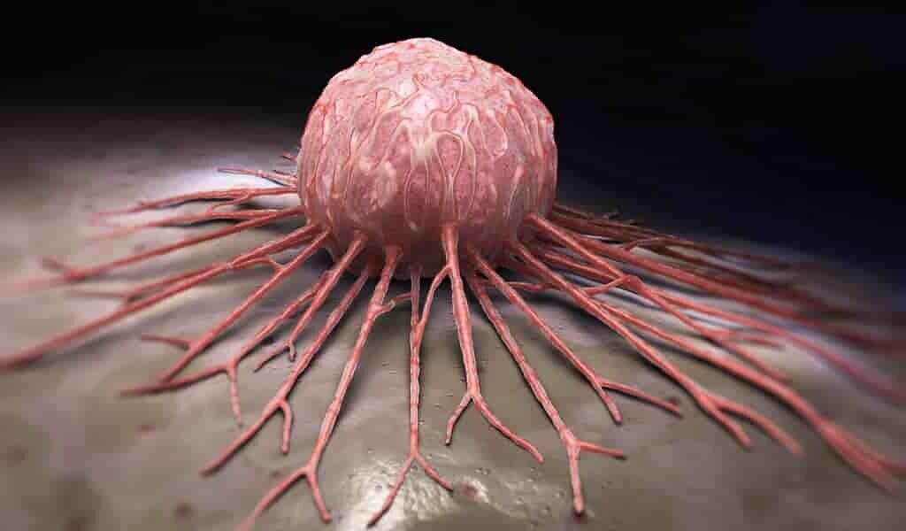 exploiter-les-cellules-cancéreuses-pour-les-tuer