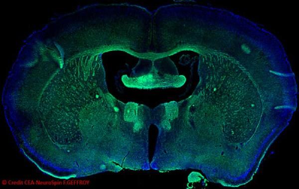 Coupe de cerveau de souris, les fibres blanches sont marquées avec un anticorps anti-myelin (vert), NeuroSpin.