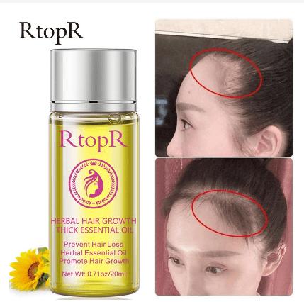 RtopR Hair Growth Essence