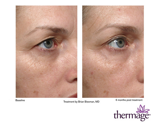 Eye lift? Nope. Thermage for Eyes lasert treatment.   Flickr