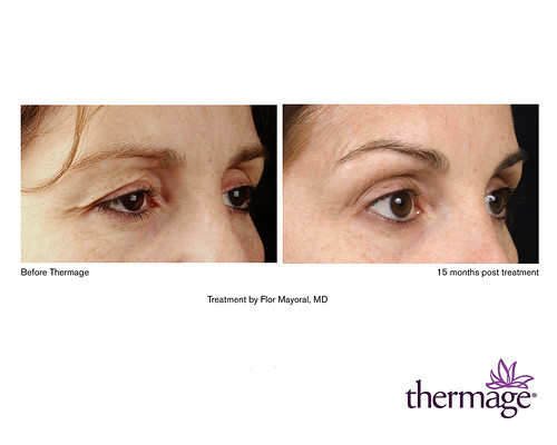 Thermage Eyes Before and After   15 month results of eye tre…   Flickr