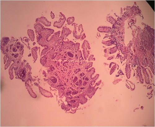Carcinoid tumor ileal biopsy image 01 | Images courtesy of ...