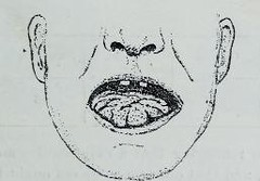 This image is taken from Page 283 of Clinical medicine : a