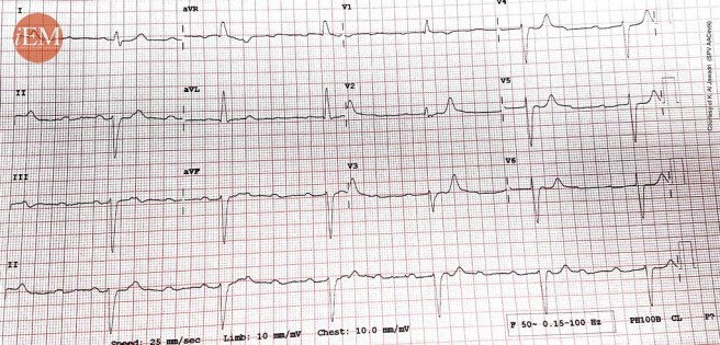 835 - 3rd degree heart block