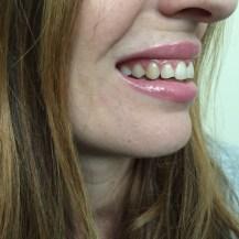 chantal boyajian smile brilliant home teeth whitening kit professional smile brilliant